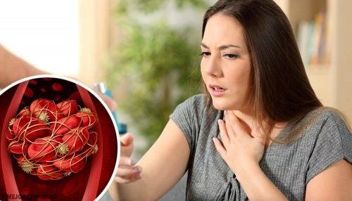 血栓 注意すべき8つの兆候