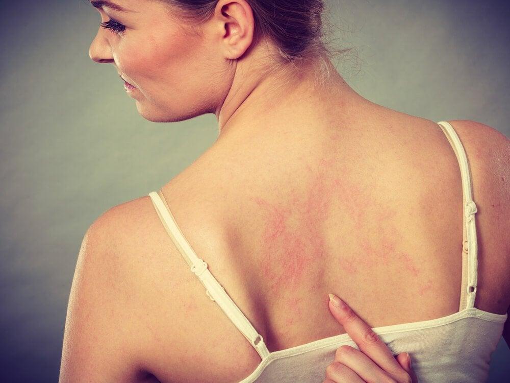 背中の湿疹のある女性
