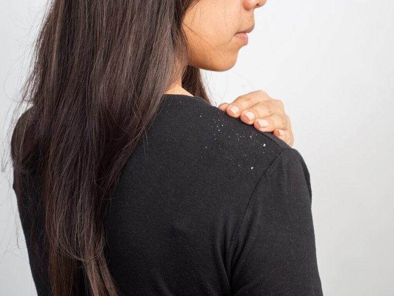 女性の肩のフケ