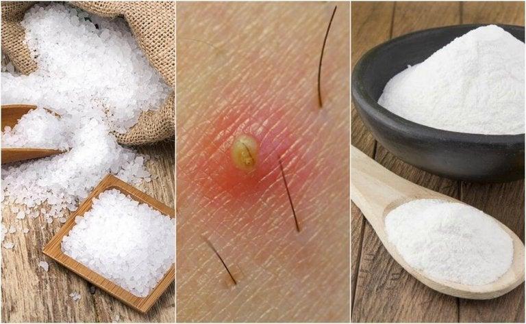 埋没毛を解決する5つの自然療法