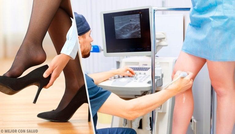 静脈瘤を和らげる3つの自然療法