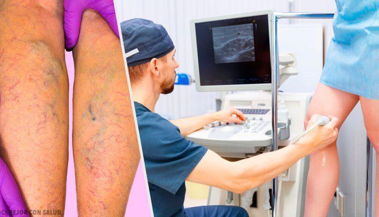 下肢静脈瘤に効くナチュラルな局所療法と経口療法