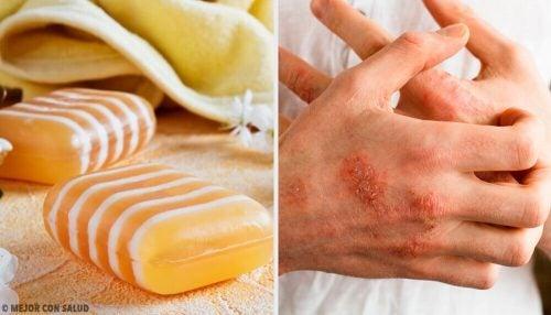 皮膚炎に効くグリセリン、プロポリス、クレイの石鹸