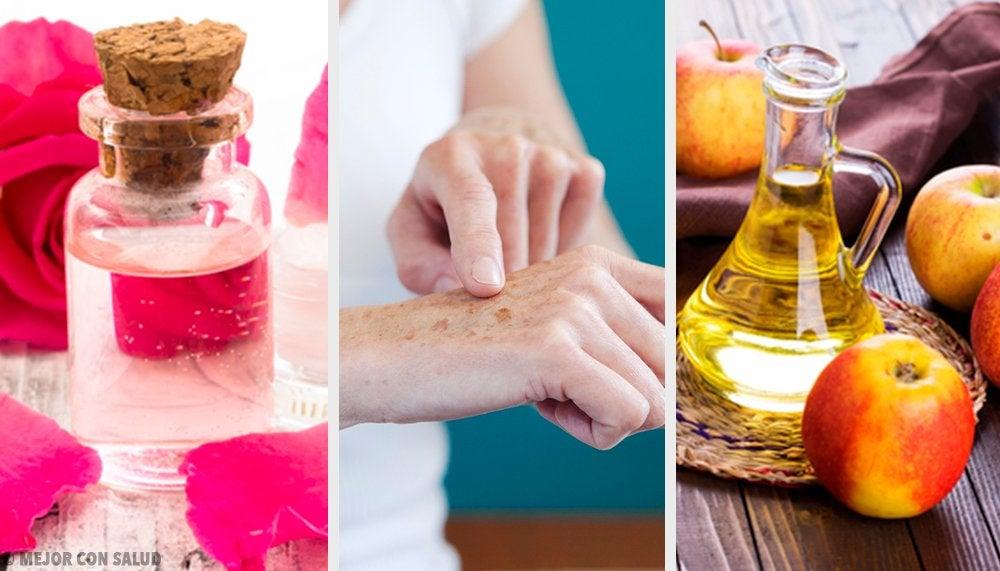 手の美白に! 8つの自然療法