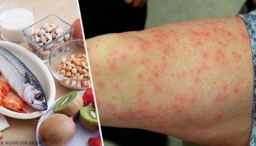 食物アレルギーを起こしやすい食品とその代替食品