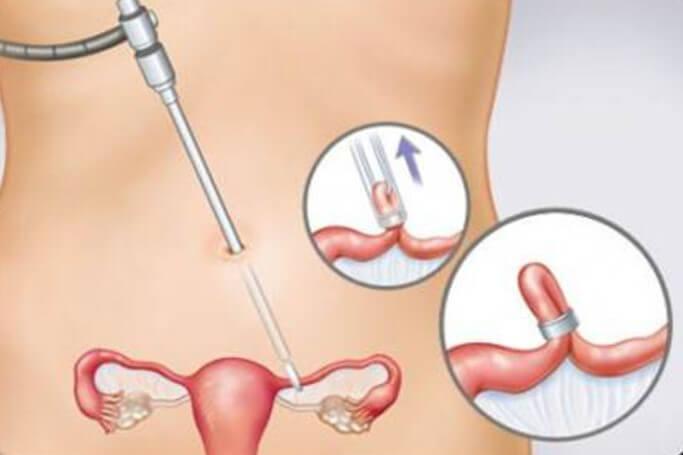 卵管結紮法
