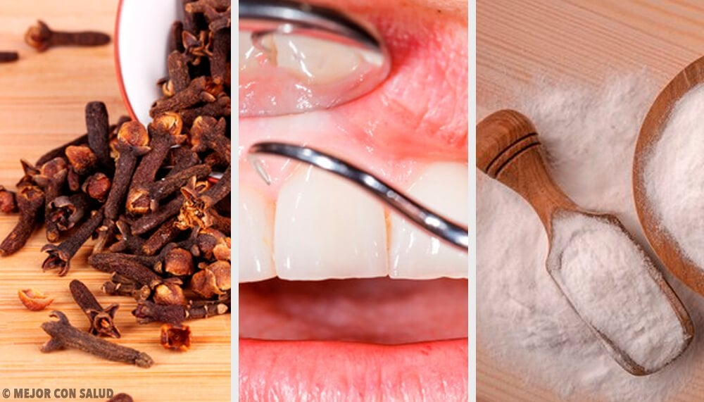 歯茎の炎症を抑える自然療法