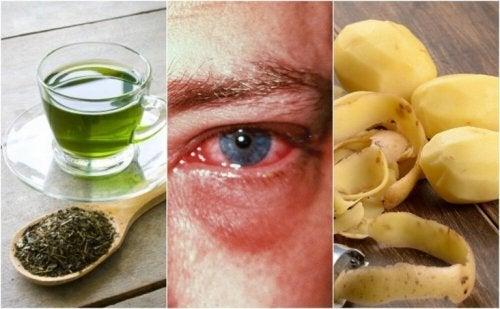 はやり目の治癒に役立つかもしれない方法ベスト8