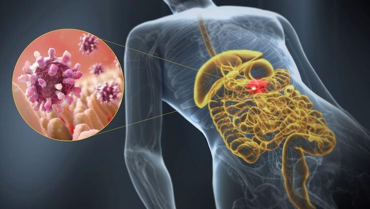 胃腸炎について知るべきすべてのこと