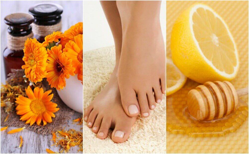 陥入爪を治療する5つの自然療法
