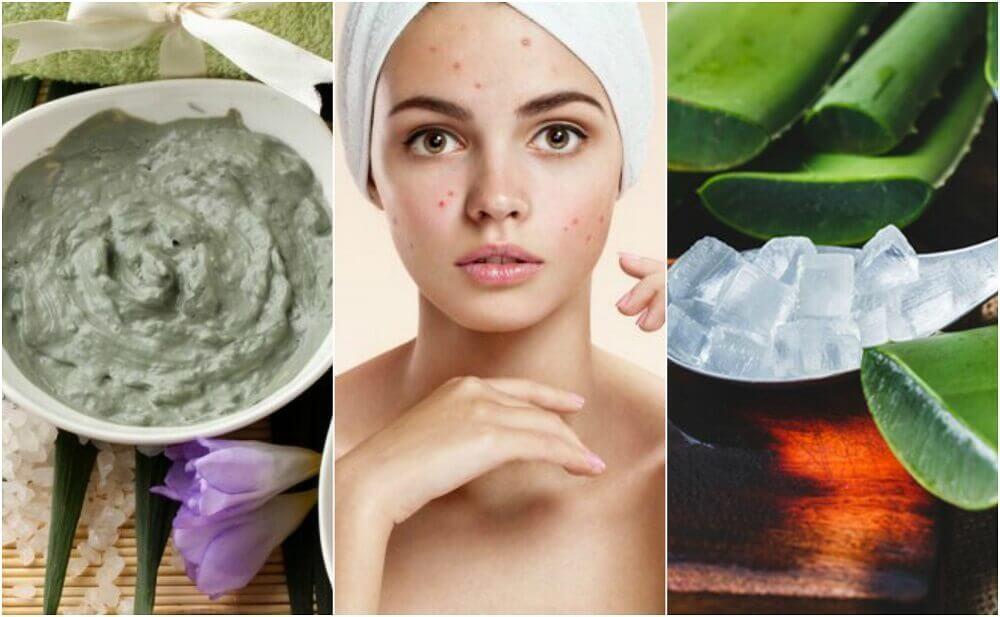 顔のニキビに効果のある自然療法5選