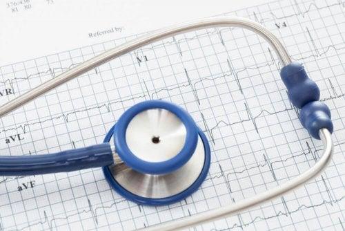 聴診器 不整脈 心拍数