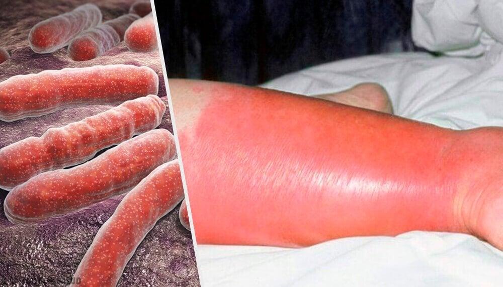 丹毒の原因、症状そして治療方法