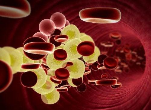 コレステロールの多い血管の内部