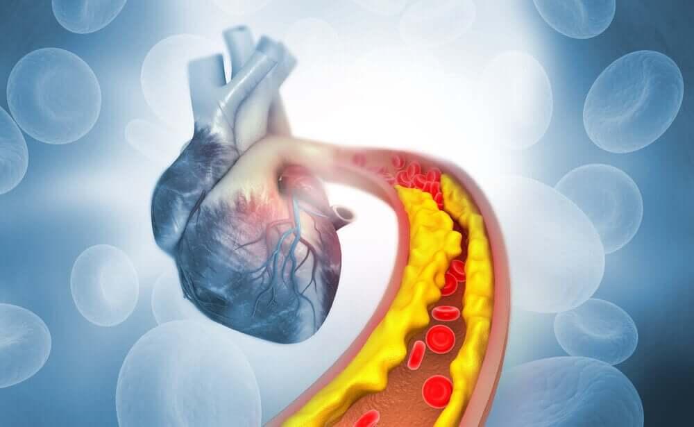 高コレステロールと心臓