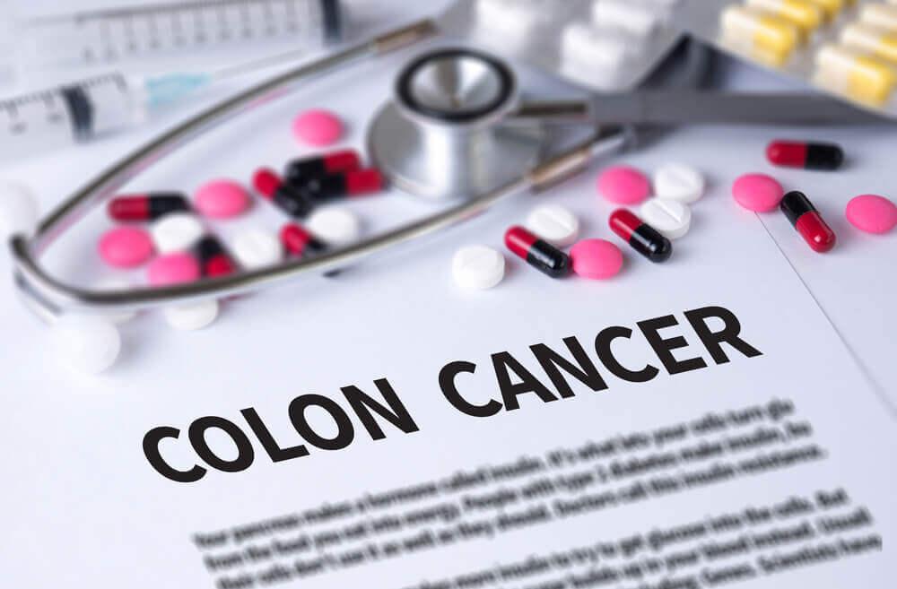 結腸癌の治療