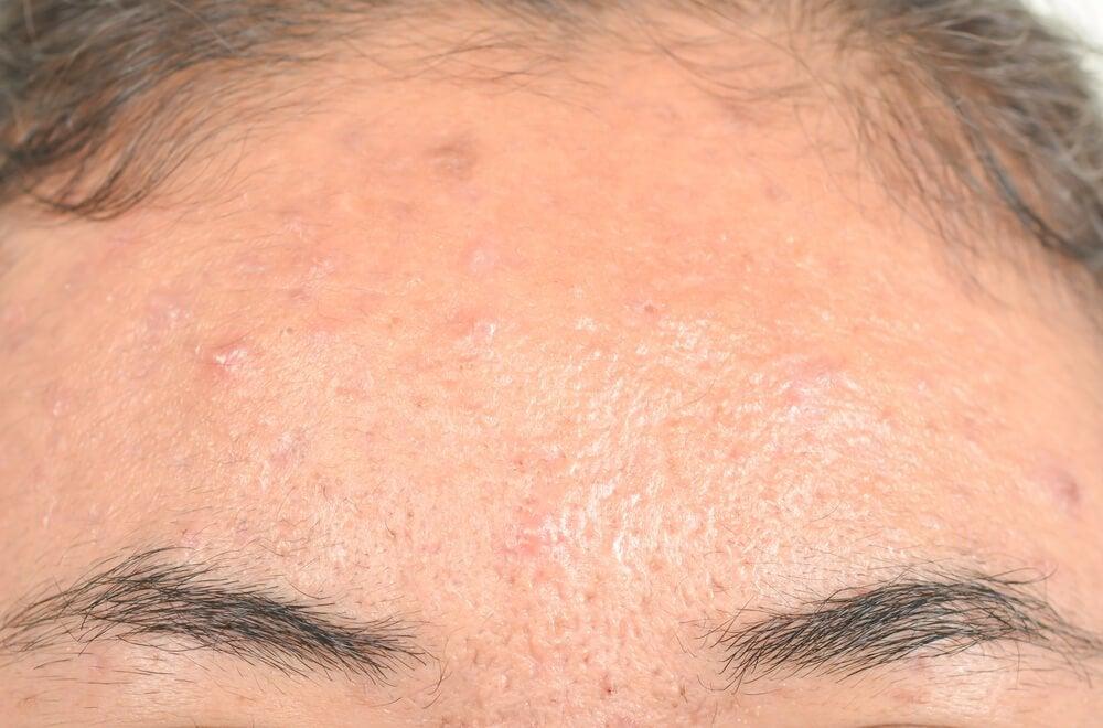 脂漏性湿疹の効果的な自然療法
