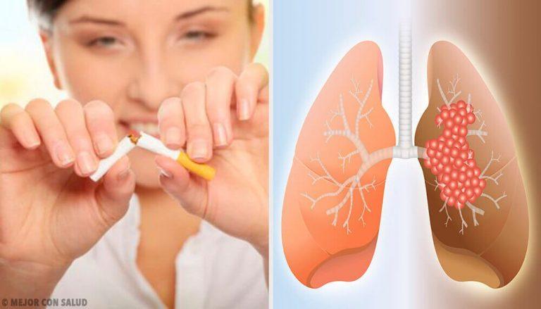 肺がんの原因と診断