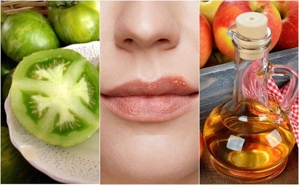 口唇ヘルペスの症状を緩和する5つの自然療法