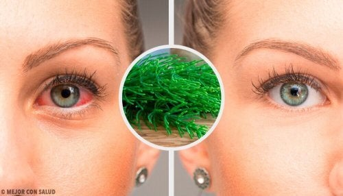 結膜炎の症状を緩和する7つの自然療法