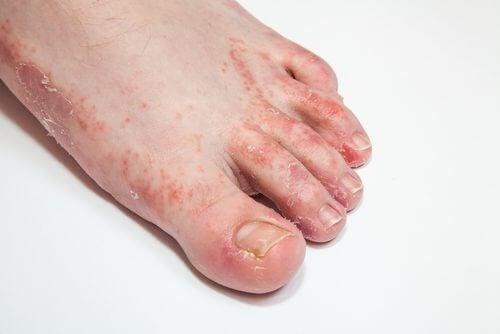 皮膚の真菌感染に効く15の自然療法