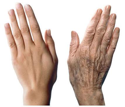 手の老化を防ぐ7つのアドバイス