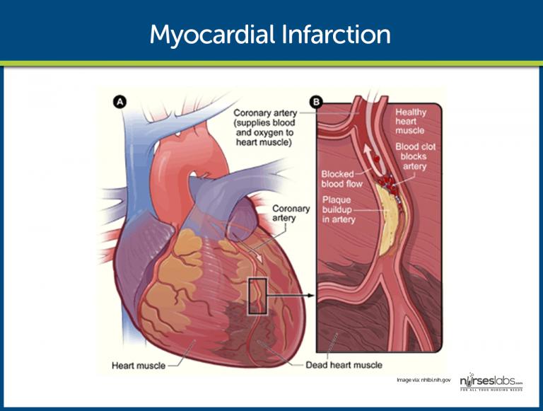 心筋梗塞の図
