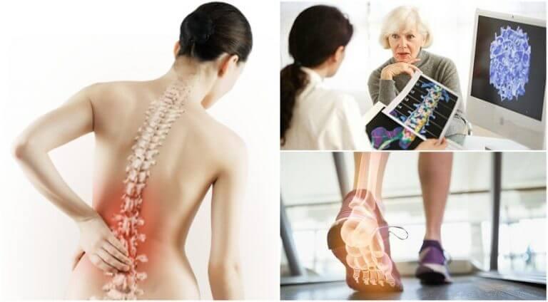 骨粗しょう症 背中の痛み