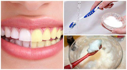 重曹で歯のホワイトニング