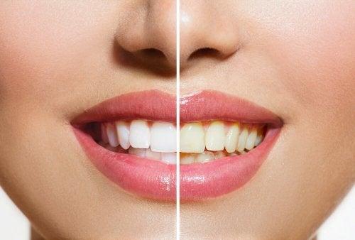 歯のナチュラルホワイトニング