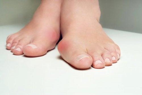 外反母趾に5つのハーブ療法