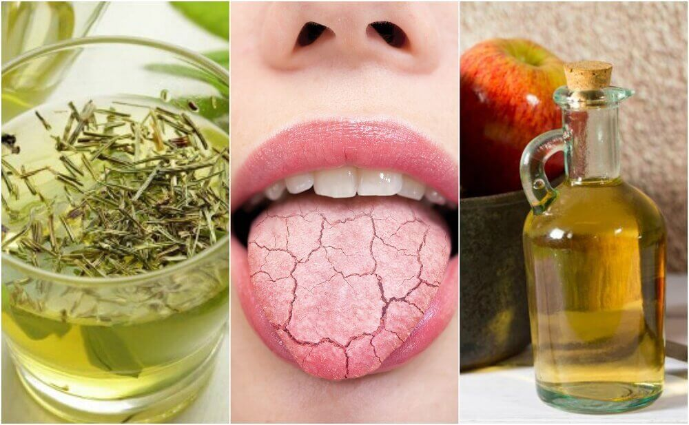 カラカラに乾燥した口を潤す5つの自家製治療薬