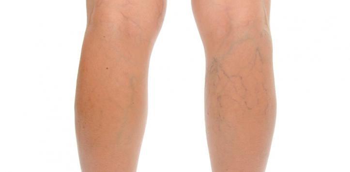 静脈瘤のある足