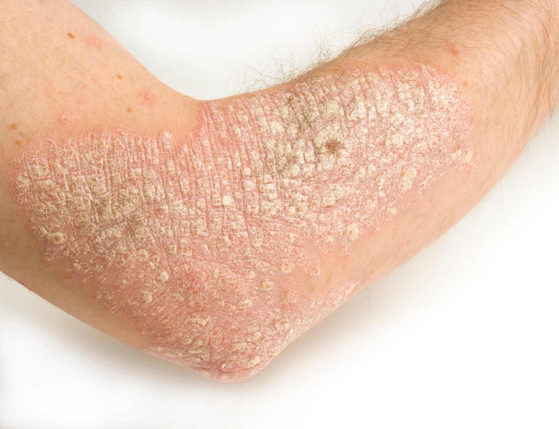 乾癬の湿疹のある腕