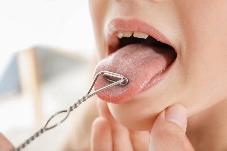 舌チェック