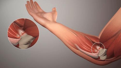 腱炎のタイプとその原因:自然な方法で治療しよう!