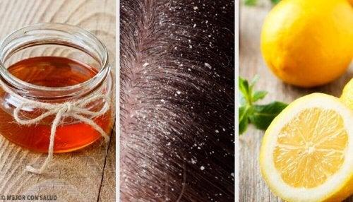 フケに効く10種類の自然療法