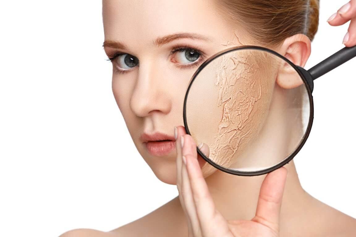 乾燥肌の治療