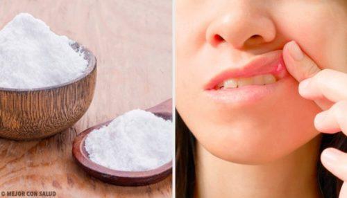 口内炎を治す8つの方法