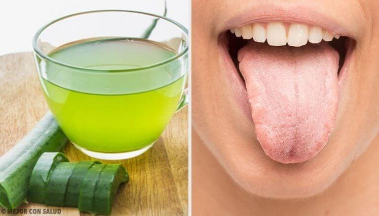 舌の白さを解消する7つの自然療法