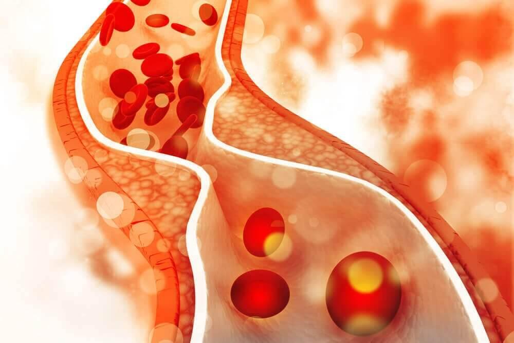 血管 高コレステロール