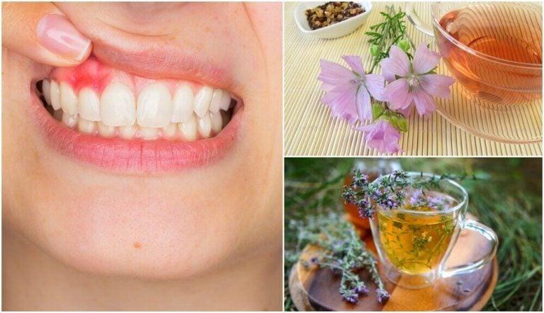 歯肉炎に効く5つの自然療法