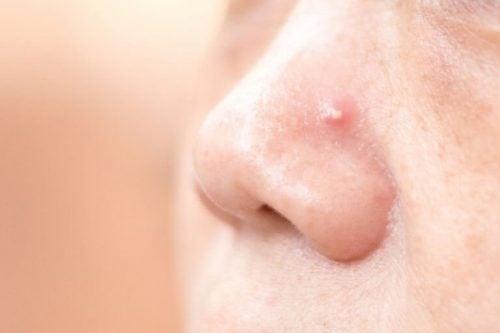 鼻ニキビを解消する4つの家庭療法