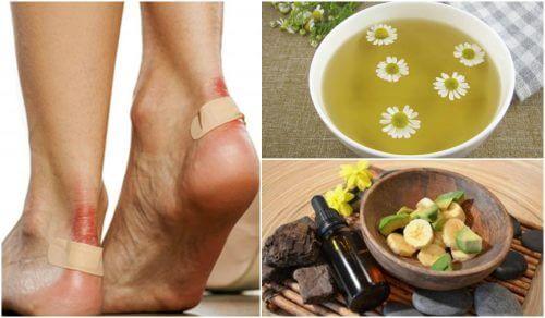 足の水ぶくれの症状を緩和する5つの自然療法