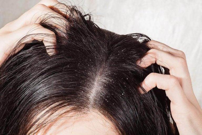 頭皮の真菌感染症に効果のある自然療法6選