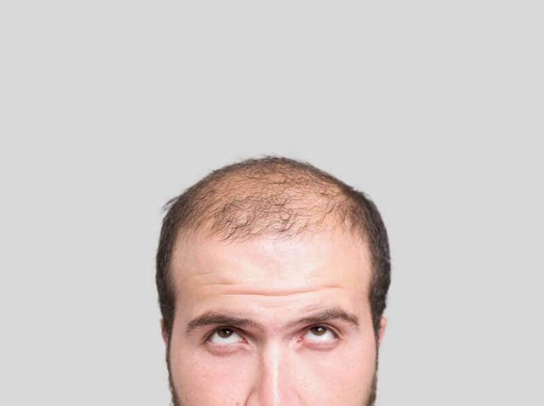 気になる薄毛に効果的な3つの家庭療法をご紹介!