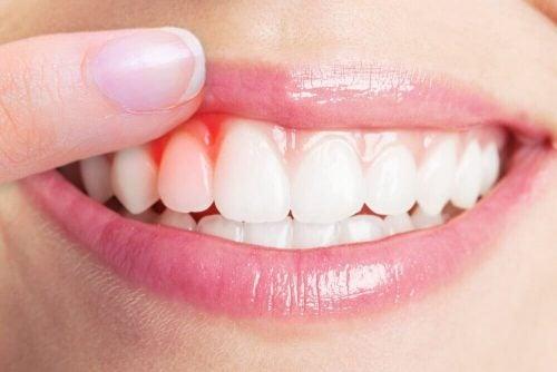 歯周病の自然療法トップ5