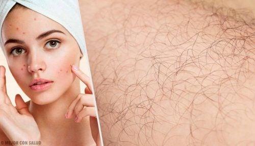 男性型多毛症ってどんな症状なんだろう?原因とその自然療法