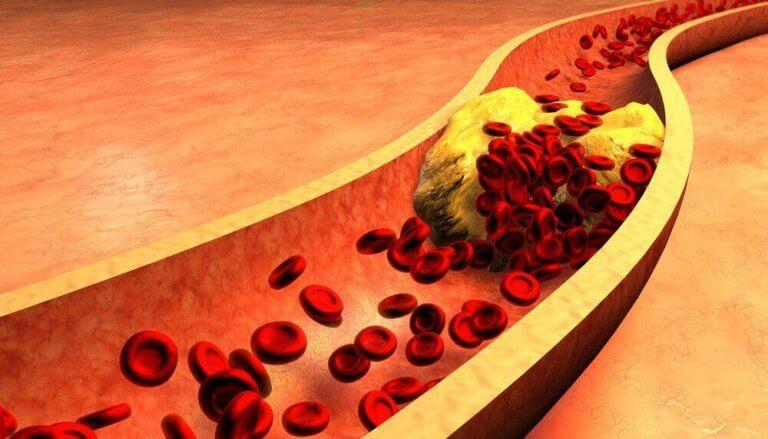 動脈をきれいにするカナリーシードとシナモンウォーター
