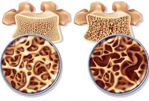 骨粗しょう症を予防するカルシウムたっぷり療法